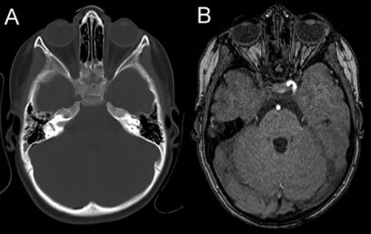 Blunt trauma and intracranial vascular injury
